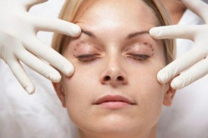 Quelle assurance souscrire pour une opération de chirurgie esthétique ?